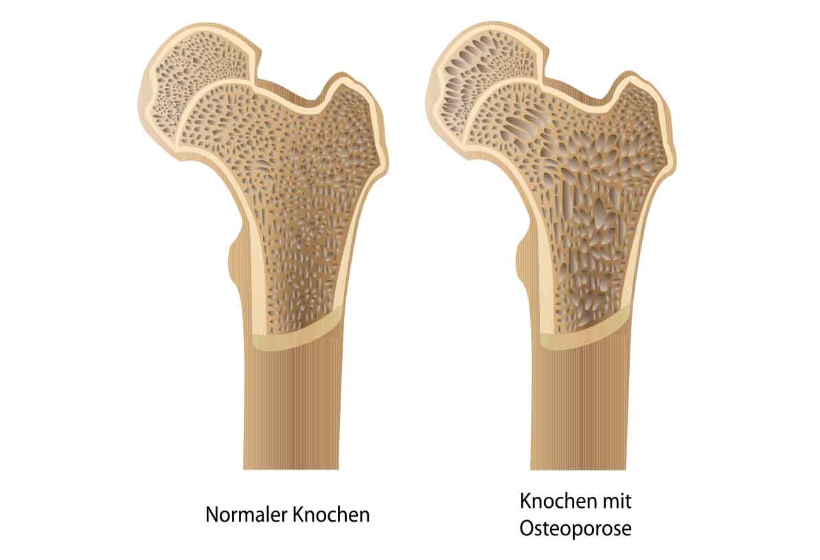 Osteoporose Orthopädie München